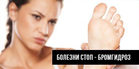 Болезни стоп - бромгидроз